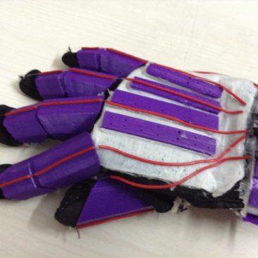 Upper Limb Assistive device
